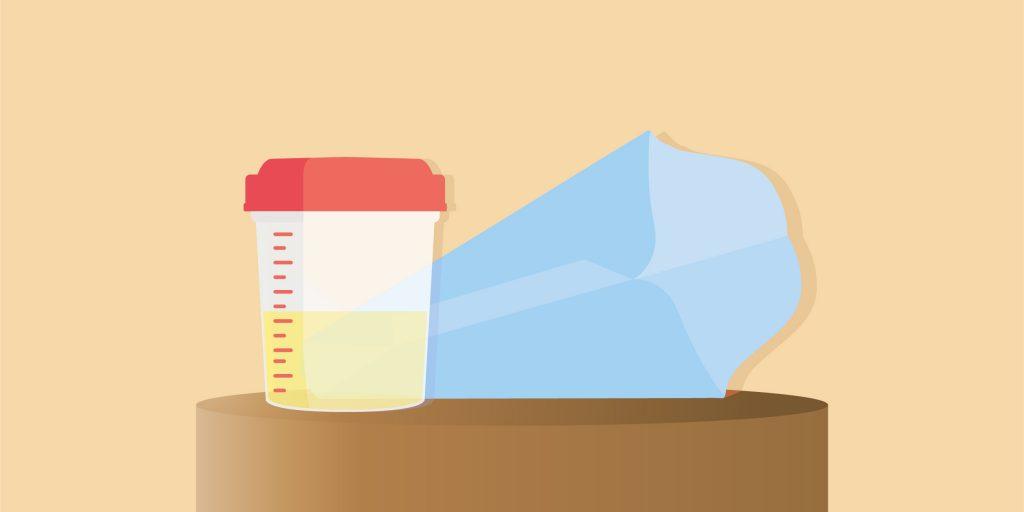 esame delle urine cosa bisogna sapere