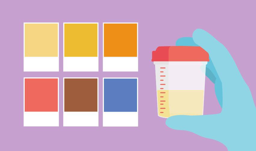 colore della pipì e salute